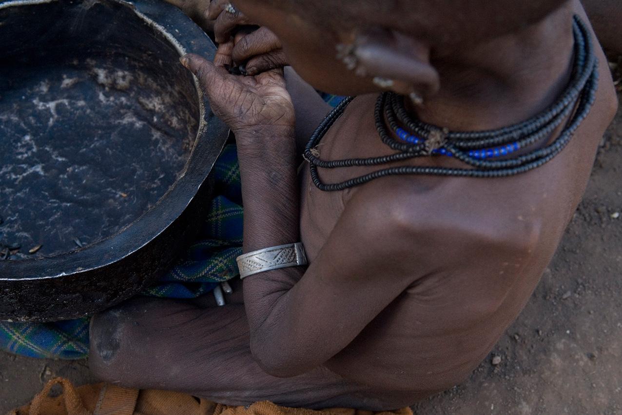 Hambruna-in-Uganda-00014